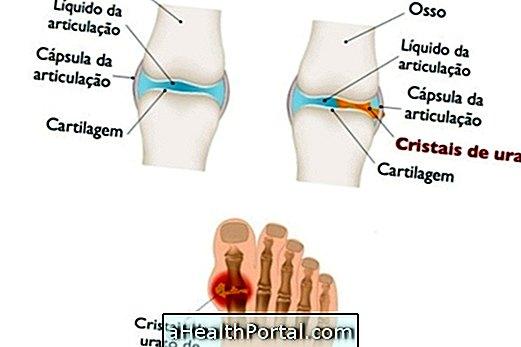 a lábujjak deformációi artritiszben