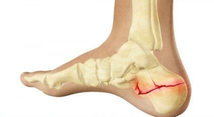 A csípő fájdalma, a lábfej feladásával
