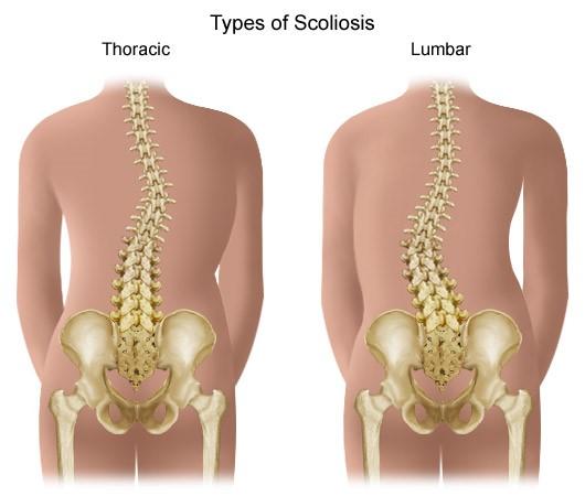 csípő coxarthrosis artrózisa