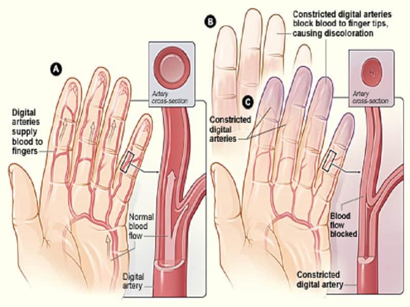 a lábak és a karok ízületi gyulladása)