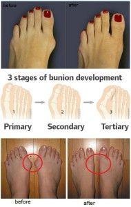 bunion közös bunion kezelés)