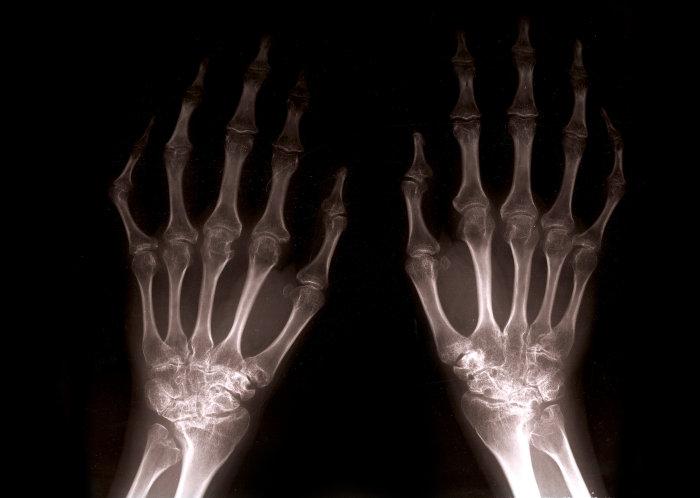 Agresszívabb lehet a reumatoid artritisz kezelése