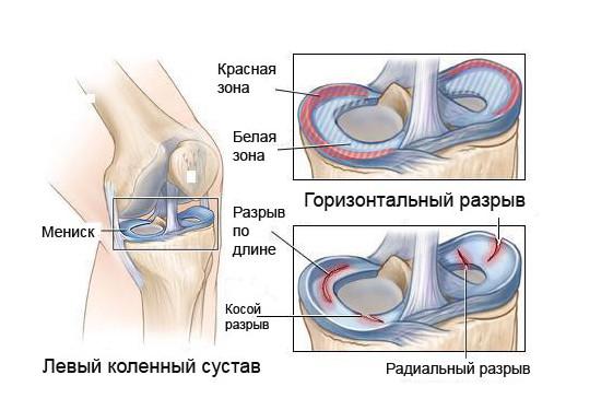 synovitis térdbetegség a nyaki osteochondrozis gyógyszereinek kezelése