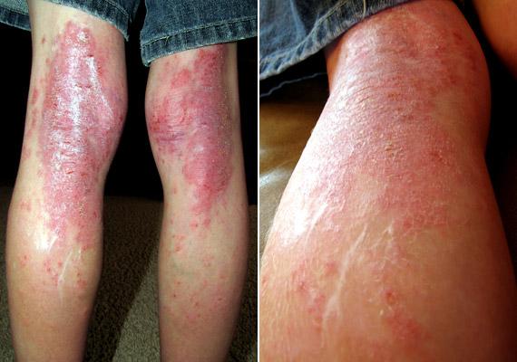 bőrgyulladás a lábak ízületein