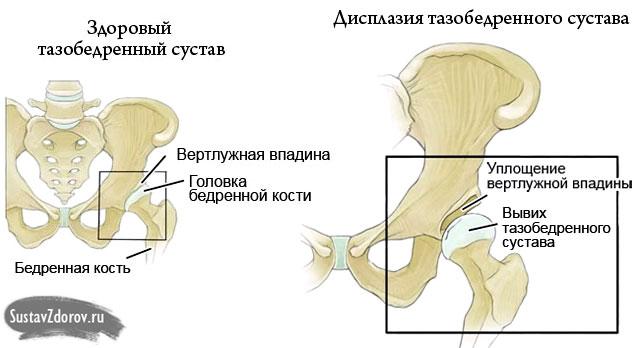 ízületi sérülések és betegségek