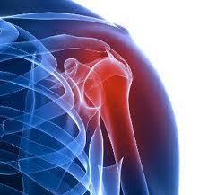 artrózis és a vállízület bursitisz)