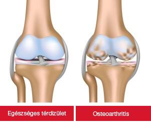térdízület artrózissal)