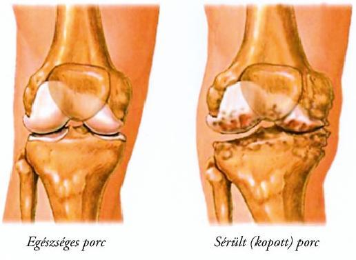 A térd synovitis okai és tünetei