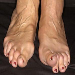 fájdalom a lábak ízületeiben az orvi után