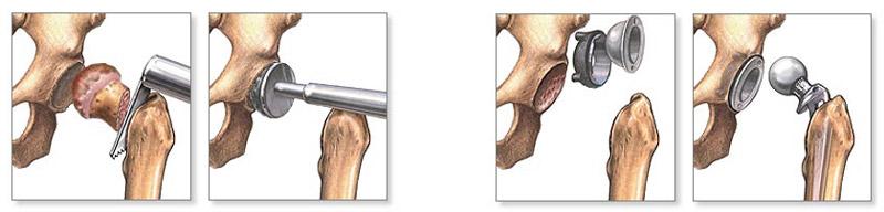 deformáló coxarthrosis a csípő kórtörténetében)