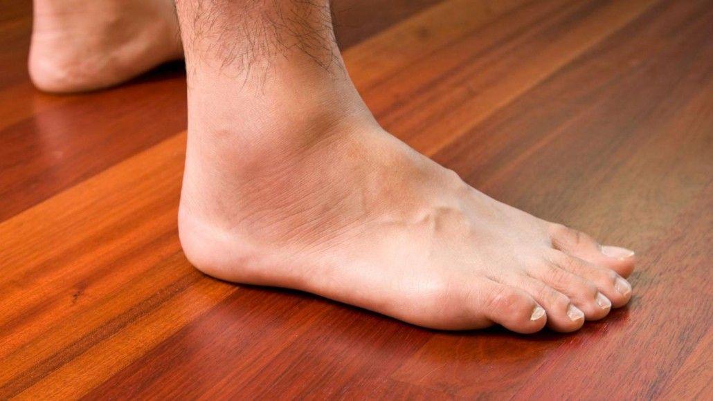 ha a láb megduzzad az ízületekben)