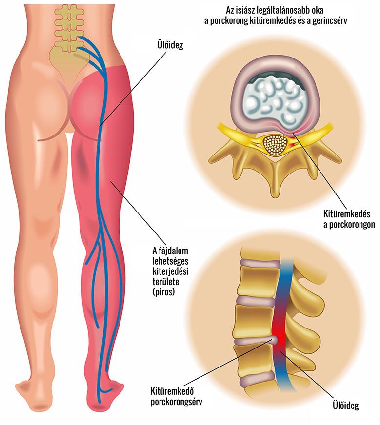 súlyos fájdalom a csípőízületben és a karokban)