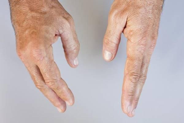 első ujj ízületi betegség)