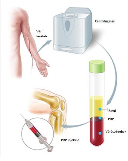 ízületi kezelés sinocrom)