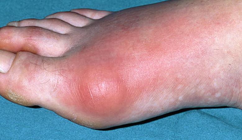 a láb ízületeinek gyulladása és duzzanata