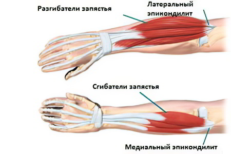 A könyökízület epicondylitisének okai, típusai, tünetei és kezelése - Homorú-domború lencse