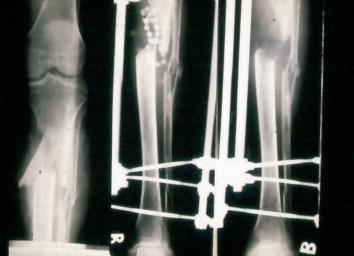 Csontvelőgyulladás (osteomyelitis)