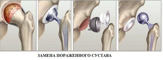 a lábujjak ízületei sérülés közben járnak hogy ízületi fájdalmakkal nem lehet enni