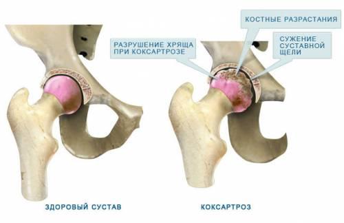 hogyan kezeljük a csípőízület coxarthrosisát 3 fokkal)