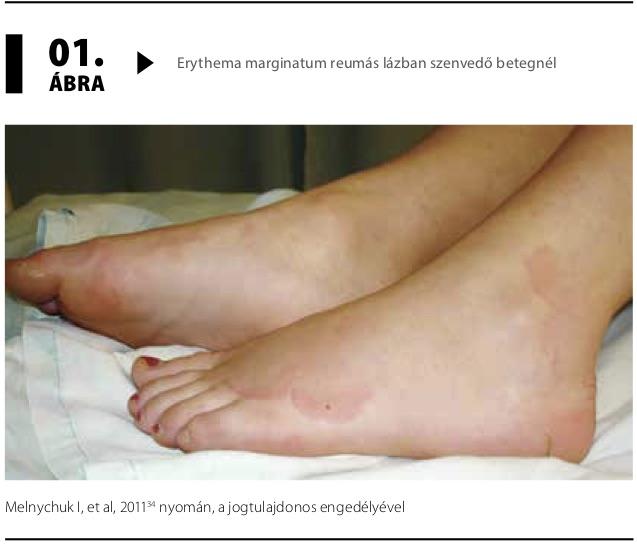 streptococcus ízületi kezelés)