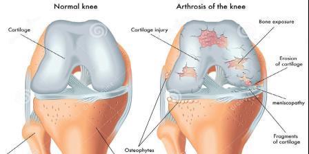 a térd kompressziós artrózisa