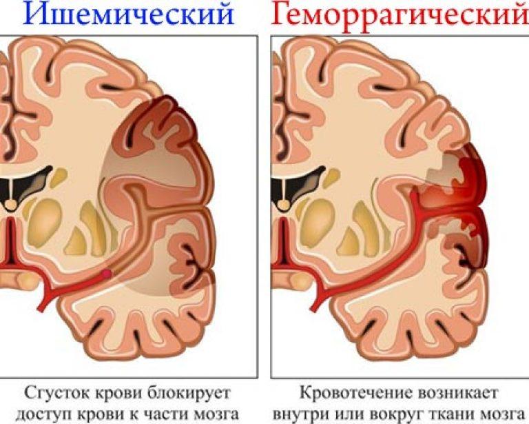 ízületi fájdalom ischaemiás stroke után.)