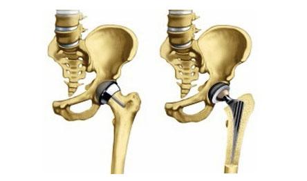 a térdízület ragasztásainak részleges törése csípőfájdalom belső részén
