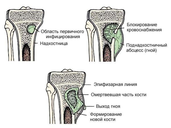 csípőfájás a bal ízületben