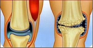 láb deformáció kezelés artrózis)