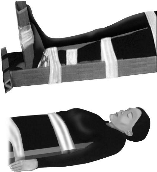 elsősegély a csípőízület sérüléseihez a térd osteoarthritis kezelésére vonatkozó előírások