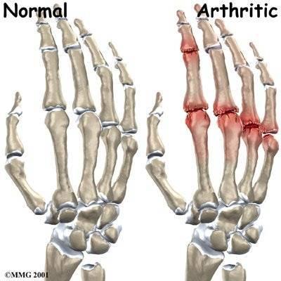 hogyan lehet enyhíteni a térdízület fájdalmát az artrózissal ízületi fájdalom intenzív fizikai erőfeszítés