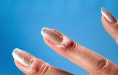 gyűrűs ujjgyulladás)