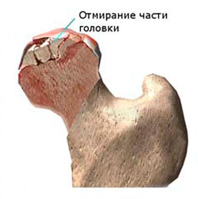 artrózis a csípőízület 1-2 fokos)