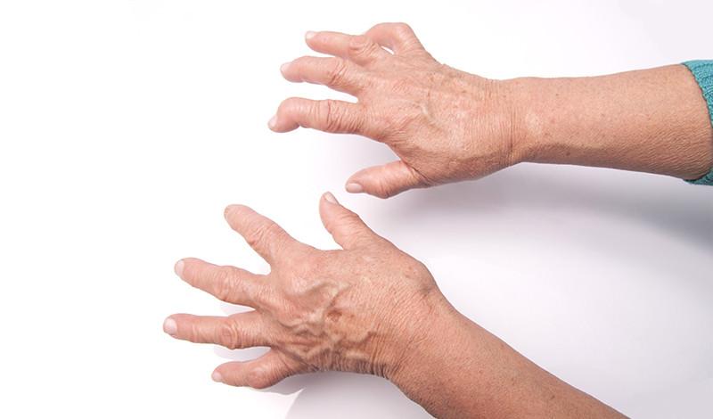 az ujjak rheumatoid arthritis tünetei és kezelése)