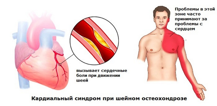 fejfájás a nyaki osteochondrozist kezelő gyógyszerek miatt