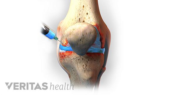 ízületi fájdalom zselatin segített hogyan és hogyan kell kezelni a térd osteoarthrosisát