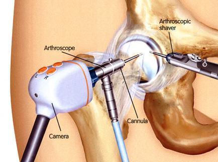 csípőízület fájdalmának kezelésére szolgáló készítmények
