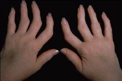 ujj deformáció rheumatoid arthritisben