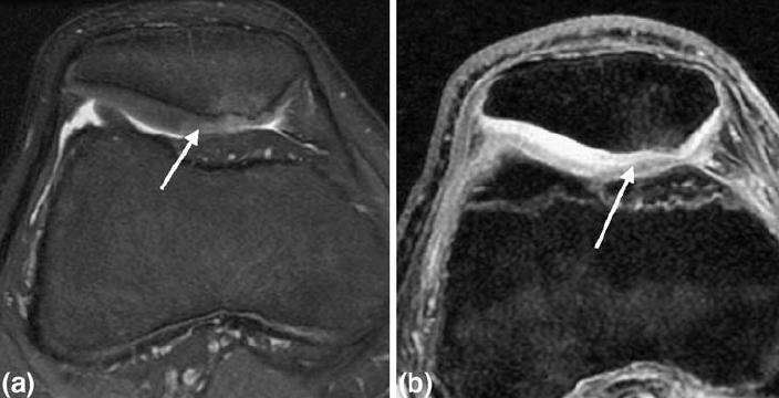 térdízület kezelésének anserine bursitisz