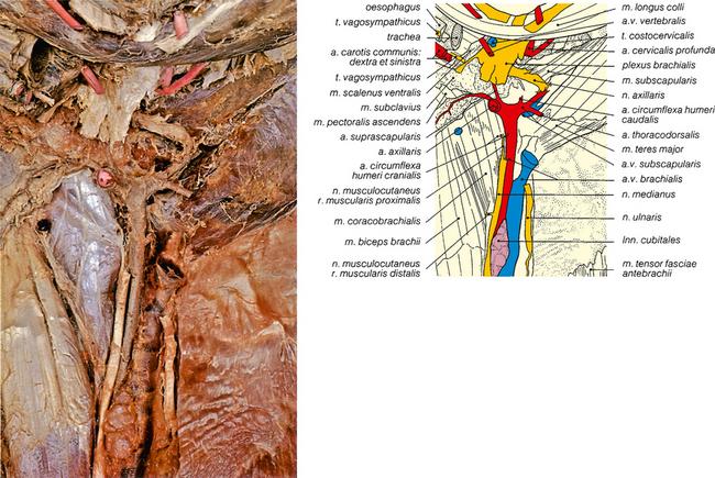 brachialis osteochondrosis kenőcs)