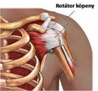 fájdalmas vállízület a csípő artrózisának kezelése