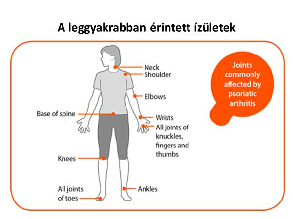 a lábujjak psoriasis ízületi gyulladása)