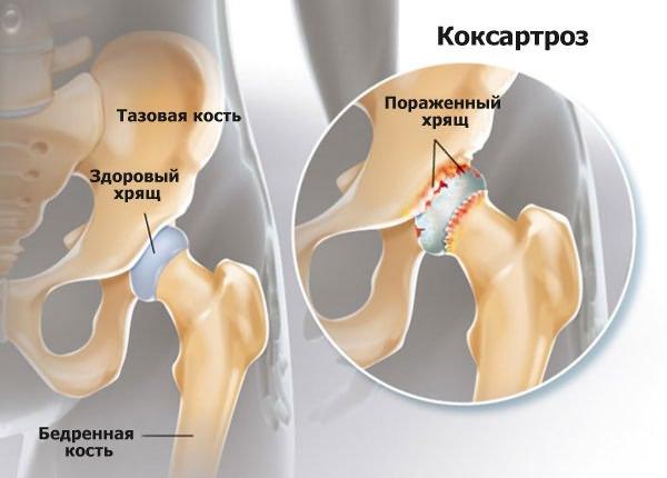 Osteoarthrosis coxae, primer
