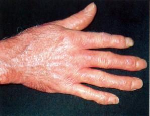 szisztémás kötőszöveti betegség tünetei