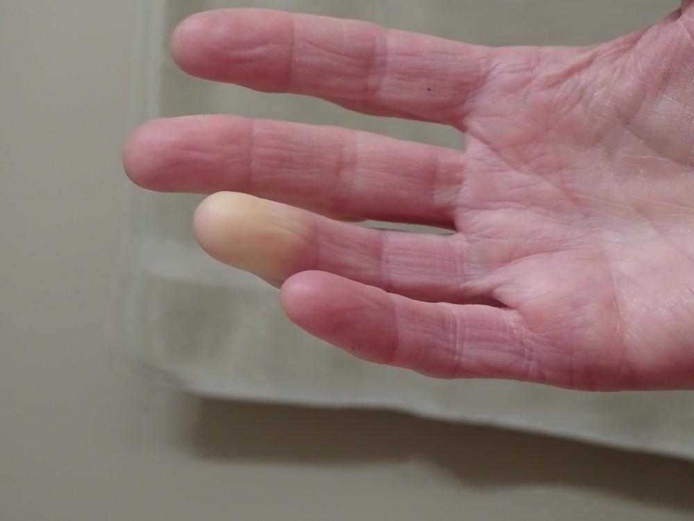 a kezelés második fokozatának osteoarthritis térd akut izületi gyulladása mi ez