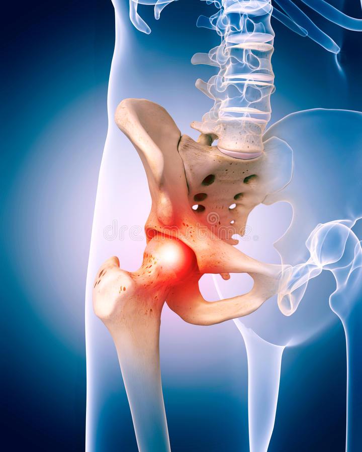csípőízület folyékony súlyos fájdalom)