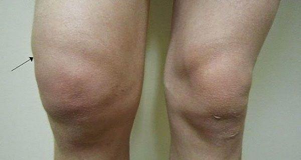 térdízület kezelés bursitis