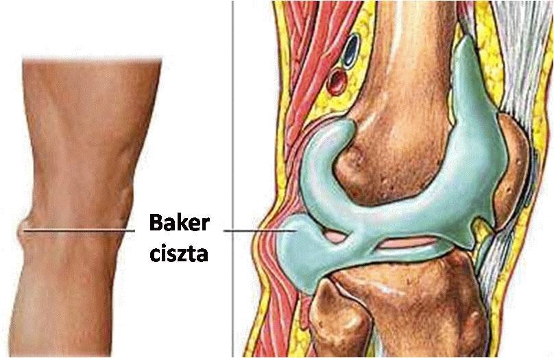 csípőgyulladás, mint a fájdalom enyhítése miért fáj a jobb láb térdízülete