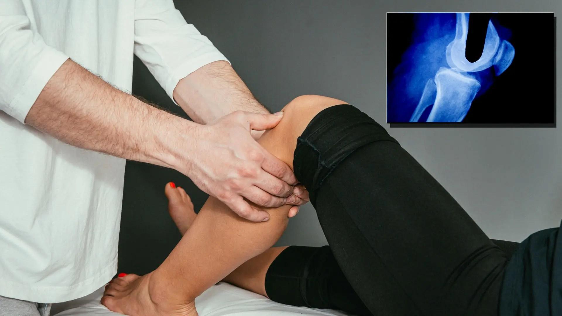 A térdfájdalom terápiás kezelése - HáziPatika