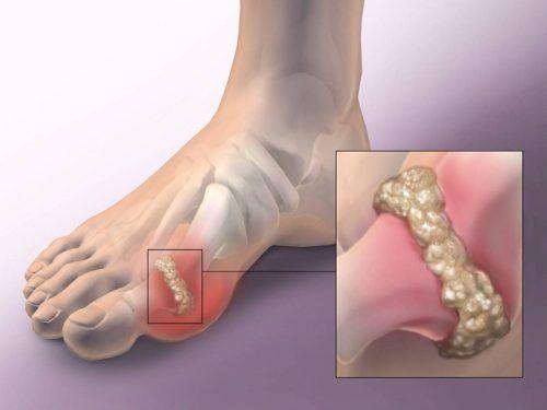 ízületi fájdalom duzzadó lábak